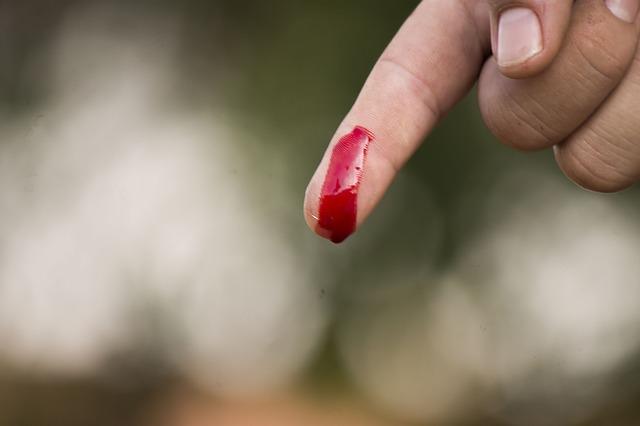 wound