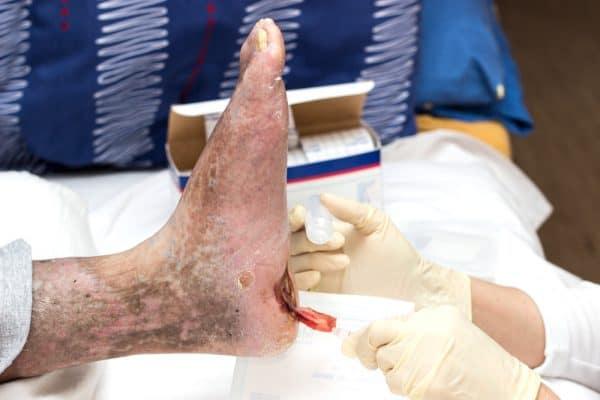 treatment of diabetic foot