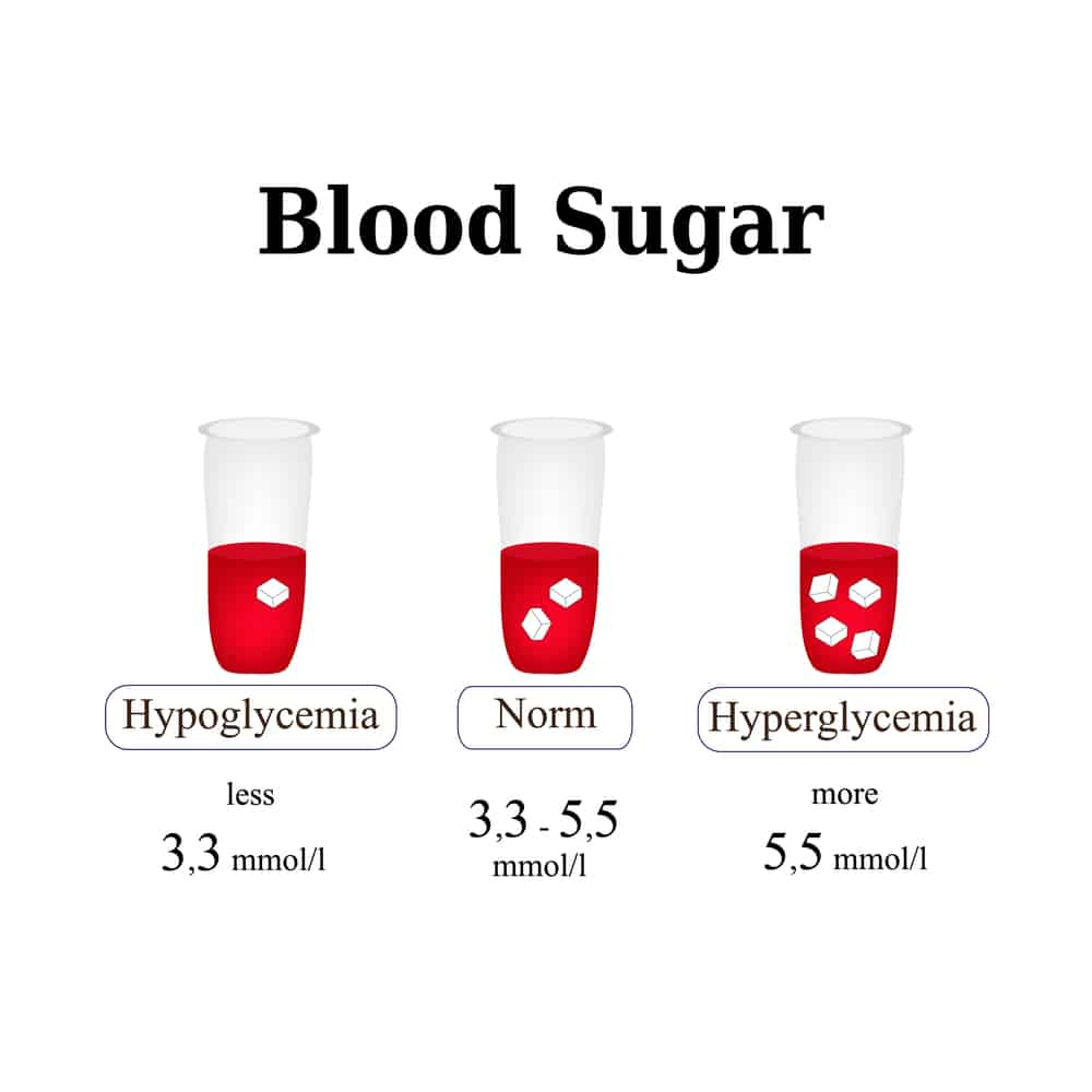 The level of sugar in the blood. Hypoglycemia. Hyperglycemia.